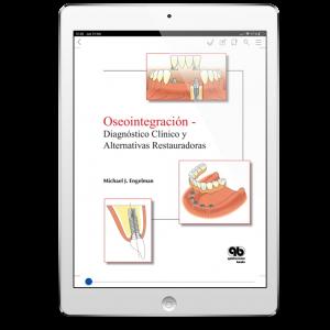 Oseointegración: Diagnóstico Clínico y Alternativas Restauradoras