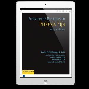 Fundamentos Esenciales en Prótesis Fija (3ª Edición)