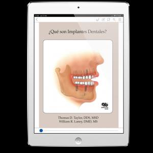 ¿Qué son Implantes Dentales?
