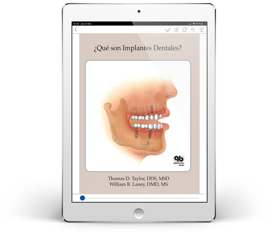 ¿Qué son Implantes Dentales?
