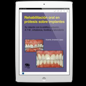 Rehabilitación oral en prótesis sobre implantes: Su relación con la Estética, Oclusión, A.T.M., Ortodoncia, Fonética y Laboratorio