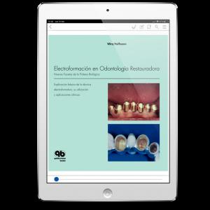Electroformación en Odontología Restauradora: Nuevas Facetas de la Prótesis Biológica