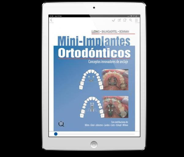 Mini-Implantes Ortodónticos