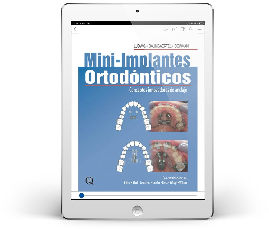 Mini-Implantes Ortodónticos