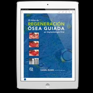 20 Años de Regeneración Ósea Guiada en Implantología (2ª Edición)