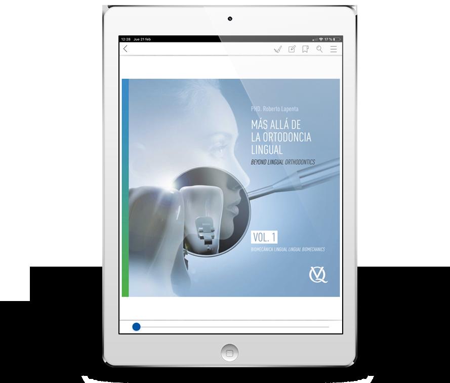 Más allá de la ortodoncia lingual. Vol. 1