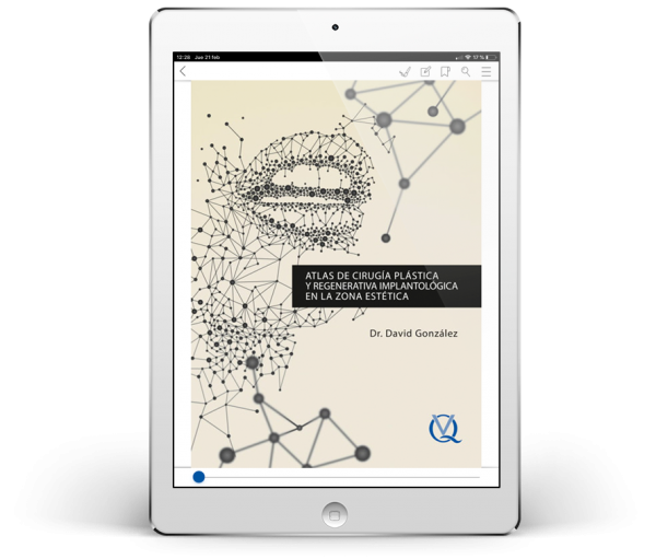 Atlas de cirugía plástica y regenerativa implantológica en la zona estética