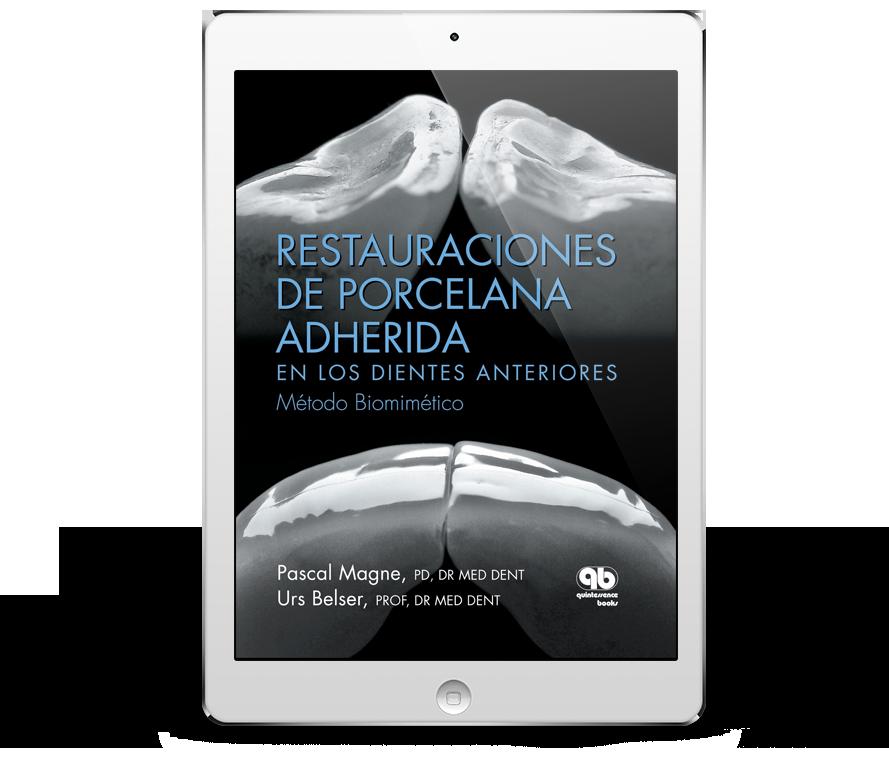 Restauraciones de Porcelana Adherida en los Dientes Anteriores: Método Biomimético