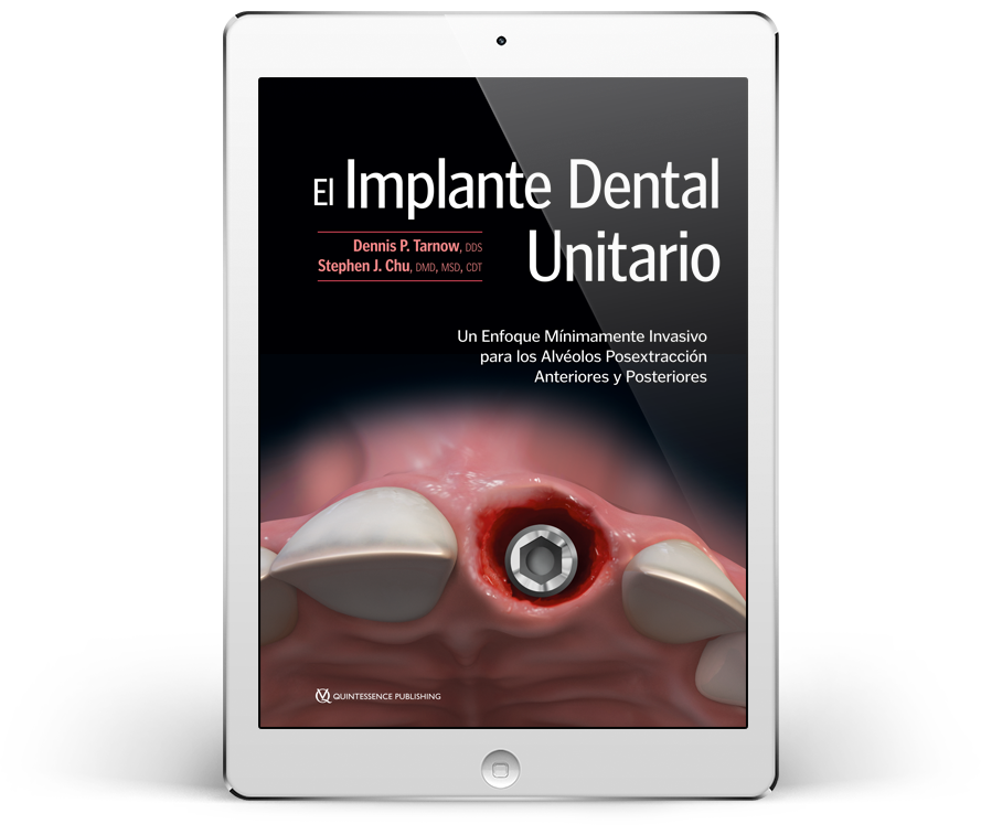 El Implante Dental Unitario