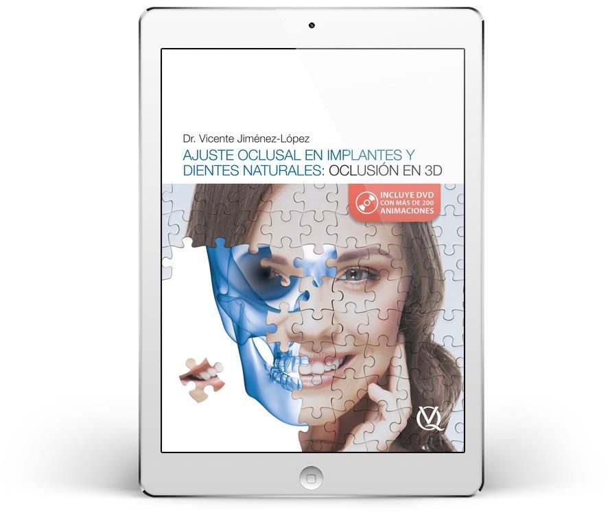 Ajuste oclusal en implantes y dientes naturales: oclusión en 3D